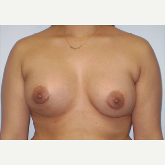 21 year old woman treated with Breast Augmentation after 3725995