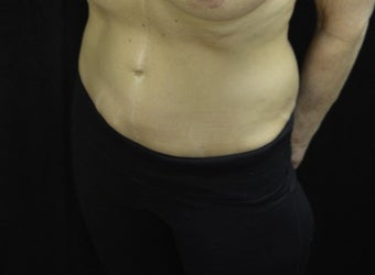 55-64 year old woman treated with Tummy Tuck after 3181948