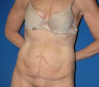 55-64 year old woman treated with Tummy Tuck before 3181948