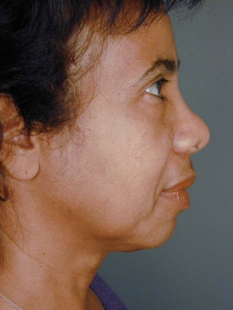 Female Chin Implant  before 887059