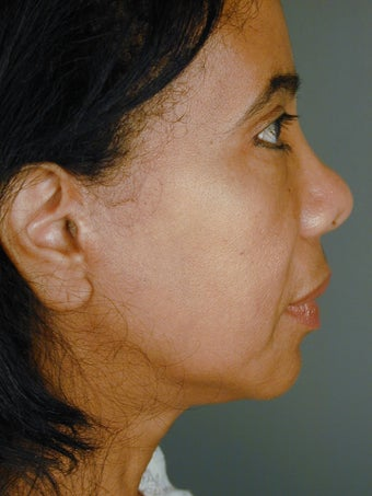 Female Chin Implant  after 887059
