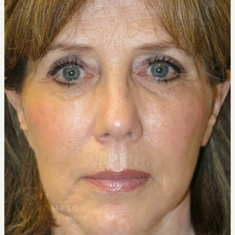 61 year old woman treated with Juvederm after 1760951