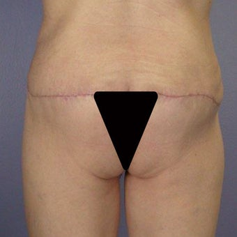 Butt Augmentation after 280811