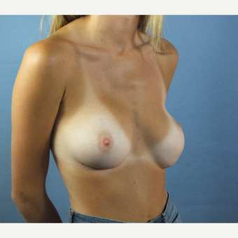 18-24 year old woman treated with Breast Implant Revision before 3163230