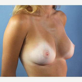18-24 year old woman treated with Breast Implant Revision after 3163230