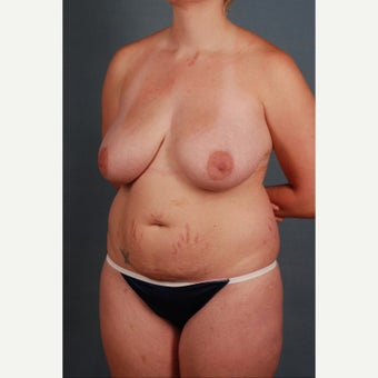 25-34 year old woman treated with Mommy Makeover 1648211