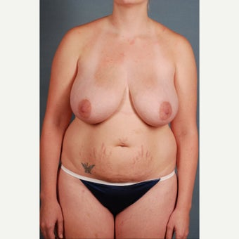 25-34 year old woman treated with Mommy Makeover before 1648211