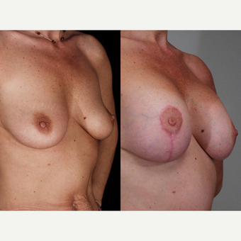 35-44 year old woman treated with Breast Lift with Implants before 3659765