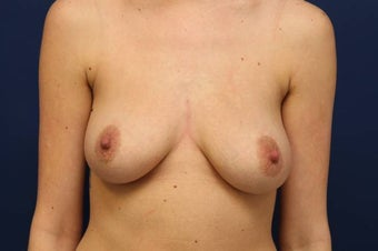 Breast augmentation with 800cc high profile breast implants before 1067070