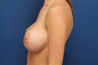 Breast augmentation with 800cc high profile breast implants 1067070