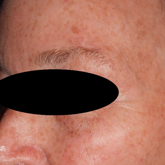55-64 year old woman treated with IPL for facial brown spots before 3183919