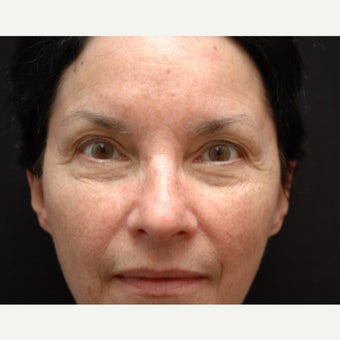 55-64 year old woman treated with Eye Bags Treatment before 2178310