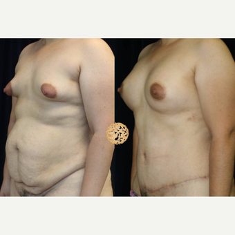 35-44 year old woman treated with Mommy Makeover after 3283497