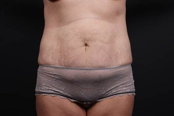 This patient underwent a full tummy tuck before 1052399