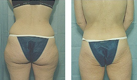 42 year had Liposuction of the outer thighs before 238096