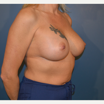 45-54 year old woman treated with Breast Augmentation after 3730493