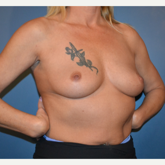 45-54 year old woman treated with Breast Augmentation before 3730493