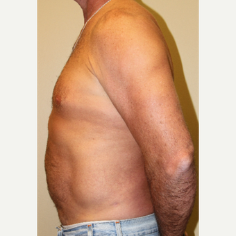 45-54 year old man treated with Liposuction after 3215414