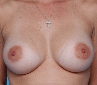 Silicone implants for breast augmentation after 67445