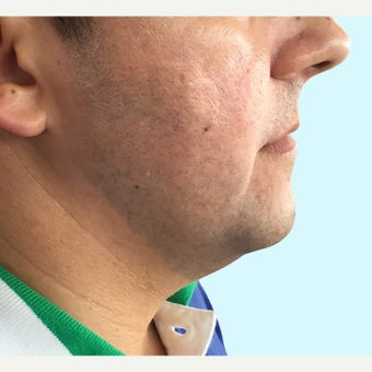 35-44 year old man treated with Kybella before 2306563