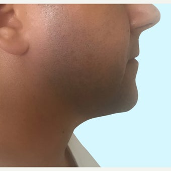35-44 year old man treated with Kybella after 2306563