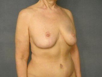 "Age: 55, Height: 5""3"", Weight: 144lbs. 994118"