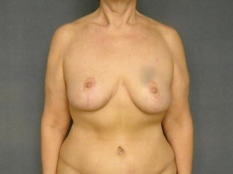 "Age: 55, Height: 5""3"", Weight: 144lbs. after 994118"