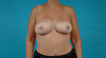 51 yo female with delayed breast reconstruction--autologous DIEP after 1267916
