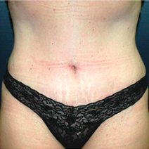39 year old woman treated with Tummy Tuck after 3578528