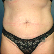 39 year old woman treated with Tummy Tuck before 3578528