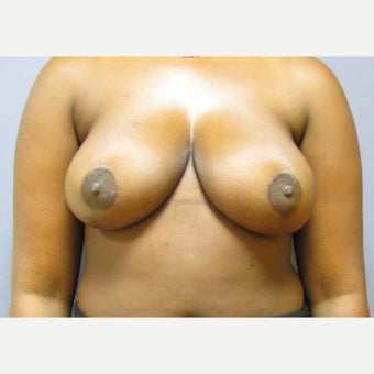25year old woman treated with anchor incision Breast Reduction after 2625988