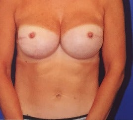 35-44 year old woman treated with Breast Reconstruction after 3565178