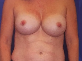 35-44 year old woman treated with Breast Reconstruction before 3565178