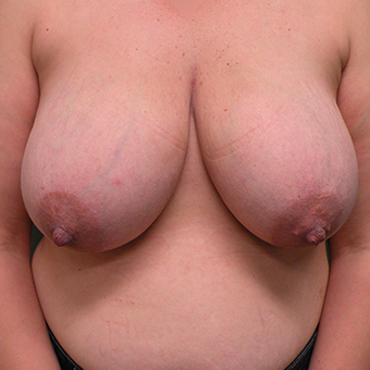 35-44 year old woman treated with Breast Reduction before 2850921