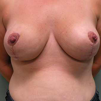 35-44 year old woman treated with Breast Reduction after 2850921