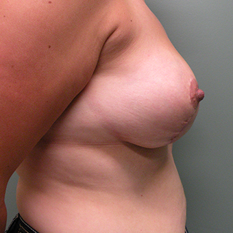 35-44 year old woman treated with Breast Reduction 2850921