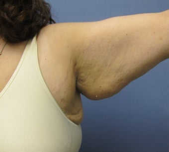 Arm Lift (Brachioplasty) before 3611631