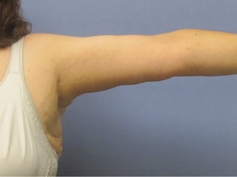 Arm Lift (Brachioplasty) after 3611631