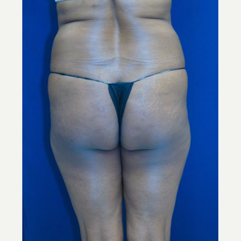 55-64 year old woman treated with Brazilian Butt Lift before 3109943