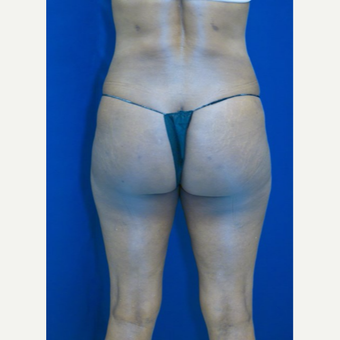55-64 year old woman treated with Brazilian Butt Lift after 3109943