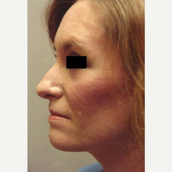 35-44 year old woman treated with Chemical Peel after 3543369