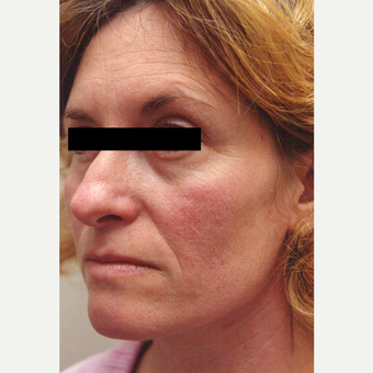 35-44 year old woman treated with Chemical Peel before 3543369