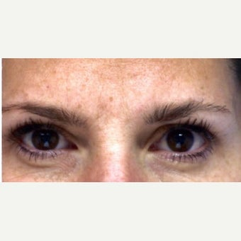 Botox To Reduce 11's and Frown Lines after 2235158