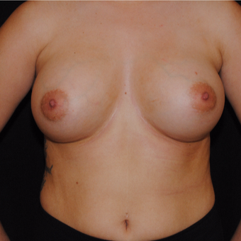 18-24 year old woman treated with Breast Implants after 3692201