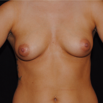 18-24 year old woman treated with Breast Implants before 3692201