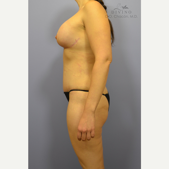 35-44 year old woman treated with Weight Loss after 3329164