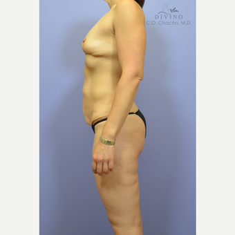 35-44 year old woman treated with Weight Loss before 3329164