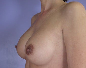 Breast Implant Correction after 281307