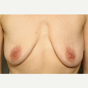 45-54 year old woman treated with Breast Augmentation & Periareolar Reduction before 3072419