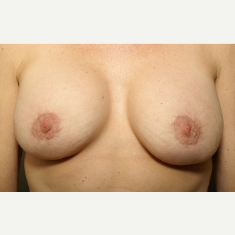 45-54 year old woman treated with Breast Augmentation & Periareolar Reduction after 3072419